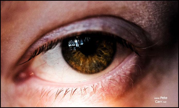 Eye on things